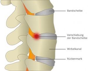 Bei einem Bandscheibenvorfall verschieben sich eine oder mehrere Bandscheiben aus der Wirbelsäule in den Wirbelkanal.